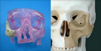 Approvato il primo innesto osseo maxillo facciale stampato 3D
